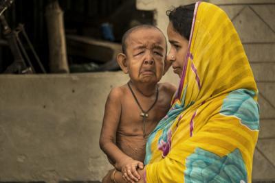بنگلہ دیش کا 4 سالہ واجد حسین پروگیريا کا شکار ہے۔ یہ وہی بیماری ہے جو پا فلم میں امیتابھ بچن کو ہوئی تھی۔ اس میں بچے کا جسم غیر متوقع طریقے سے جتنی تیزی سے بڑھتا ہے، اتنی ہی تیزی سے بوڑھا بھی ہوتا ہے۔