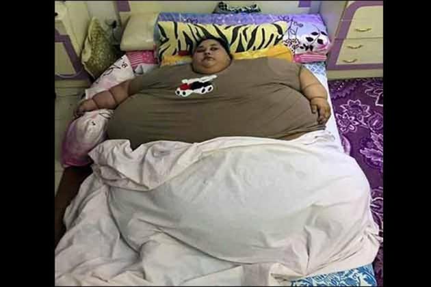 پانچ سو کلو کی وزنی عورت ممبئی میں، علاج کے لئے ڈاکٹروں نے کیں خاص تیاریاں