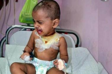 اتکل ایکسپریس حادثہ : والدین سے بچھڑ گئی تین سالہ معصوم سونی ، پکار رہی ہے صرف ماں ماں