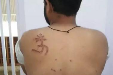 تہاڑ جیل میں حیوانیت ! مسلم قیدی کا الزام ، جیلر نے پیٹھ پر گودا